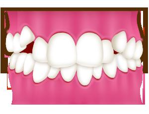 あなたが気になる歯の並びはどのようなものでしょうか?