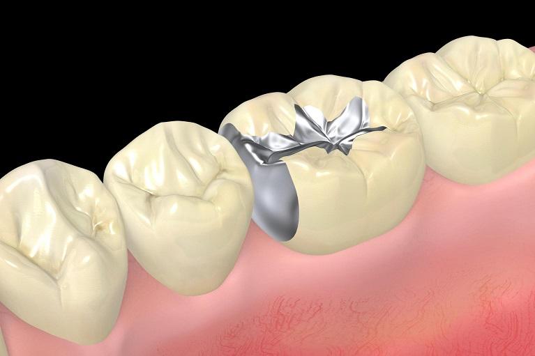 これがプラスチック・銀歯だとどうなのか…?