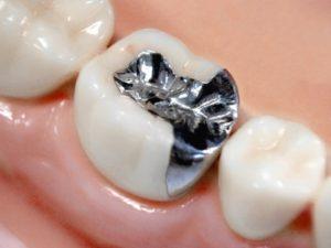 金属アレルギーがある方の歯科治療におけるポイント(症状や治療)について