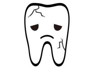自力で歯を白くすることはできません!