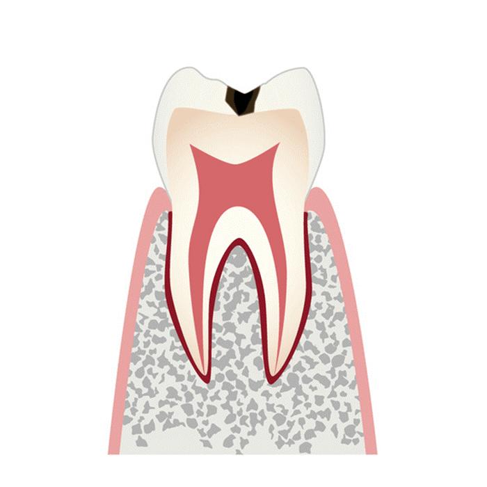 C1(エナメル質までの虫歯)