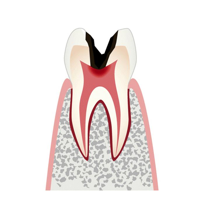 C3(歯髄(歯の神経)にまで進行した虫歯)