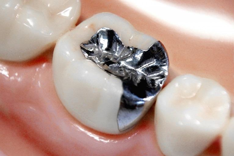 銀歯について