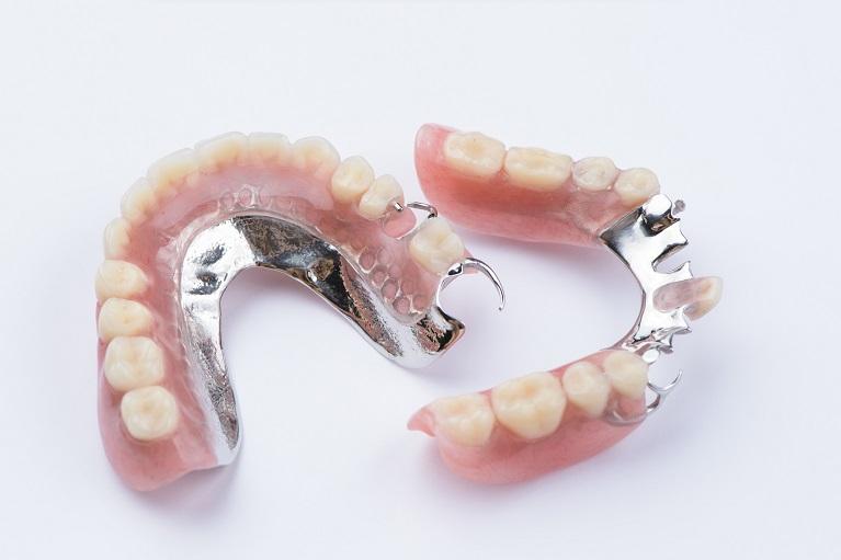 どうしても「入れ歯」の選択肢を選ばざるを得ない場合