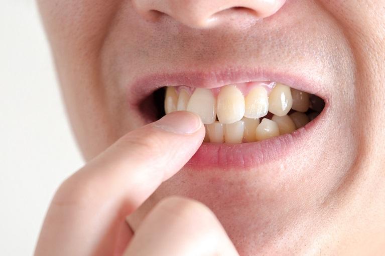 前歯のセラミック治療について