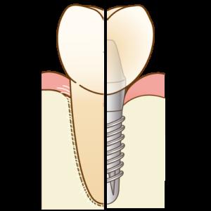 インプラントは歯周病になりやすい?