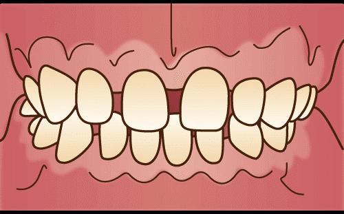 空隙歯列(くうげきしれつ)