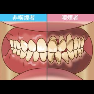 タバコを吸うと歯周病になりやすい?