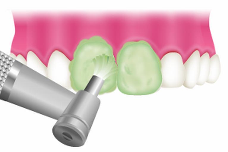 歯の表面をツルツルに研磨