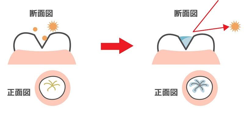 シーラントは、フッ素塗布と並んで、子どもの「むし歯予防」によく行われる処置です。