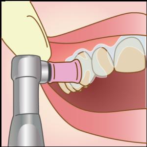 まずは歯の表面のクリーニングを行います