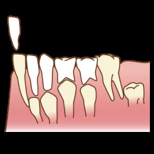 グラグラしている乳歯が抜けない時は・・・