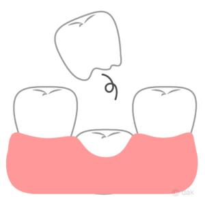 乳歯の生え変わりの時のポイント