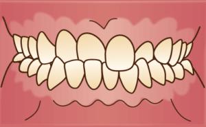 歯並びや噛み合わせが悪いと。。。