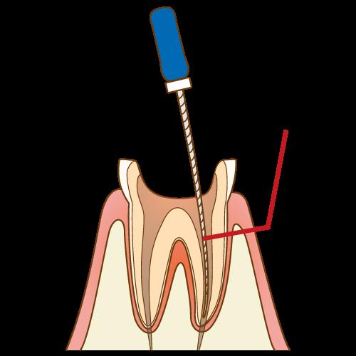 根尖性歯周炎の治療法