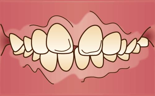 前歯の隙間(すきっ歯)が気になる方へ
