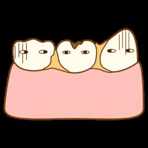 歯の間に食べ物が挟まりやすくなった方へ
