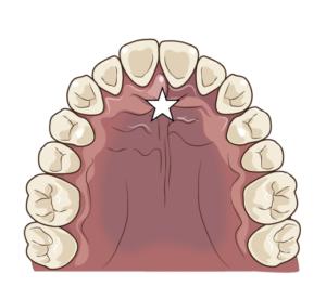 正しい舌の位置