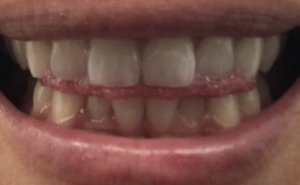 「舌突出癖」