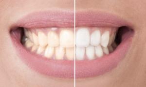 歯を白くしたい、白い歯を手に入れたいと思われたことはないでしょうか?