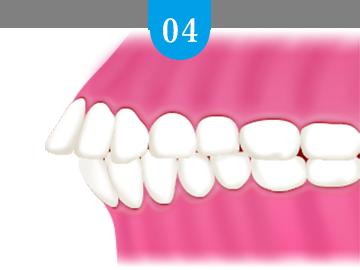 上顎前突(出っ歯・反っ歯)