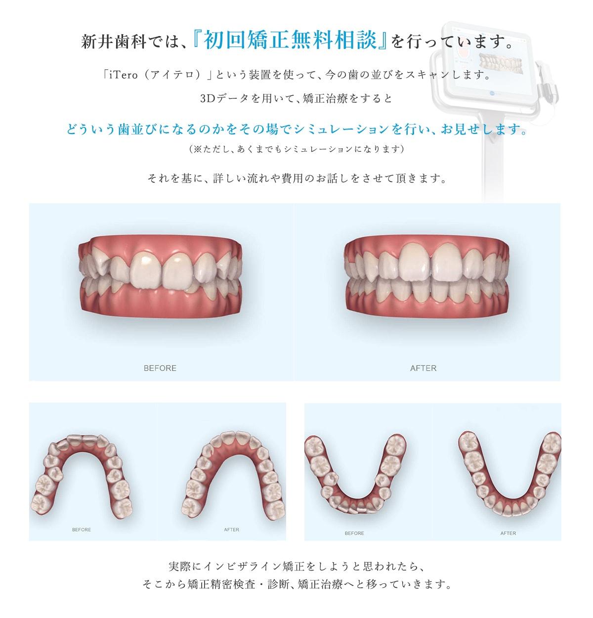新井歯科では、『初回矯正無料相談』を行っています。