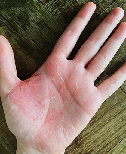 歯科金属によるアレルギー症状